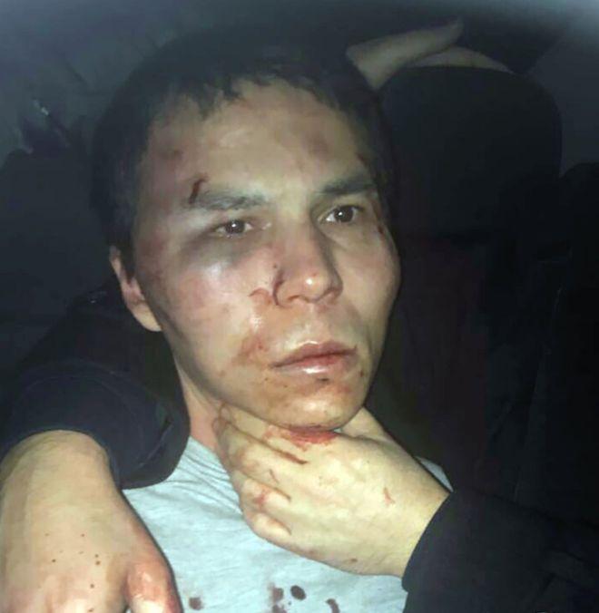 policia-libera-una-foto-del-detenido-ensangrentad-terrorista-de-estambul
